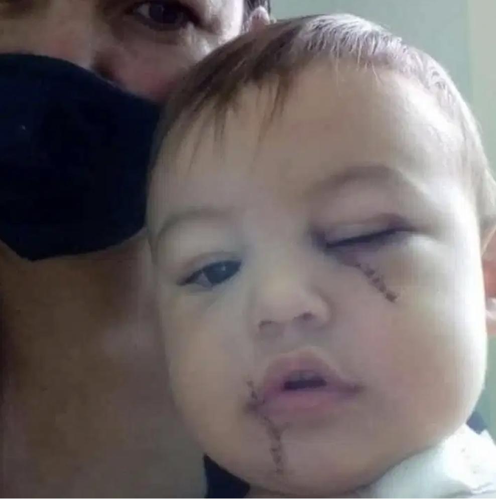 Bebê ferido por golpes de facão em ataque a creche deixa UTI em Saudades - Grupo Rio Claro SP